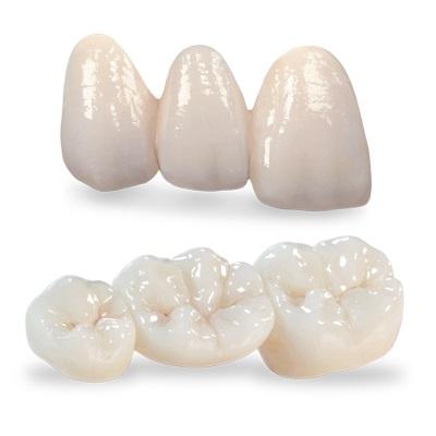 răng sứ cercon và zirconia