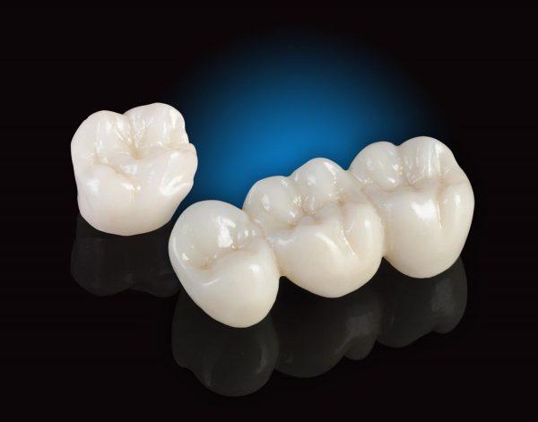 răng sứ crom coban là gì