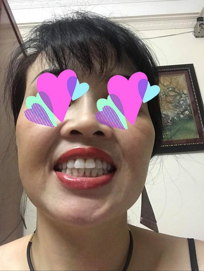 răng sứ đẹp rẻ