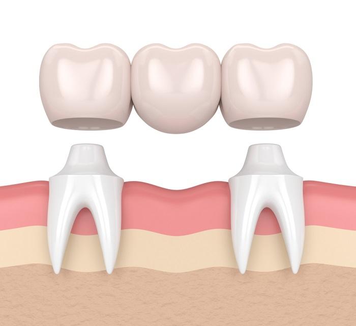 răng sứ dính liền