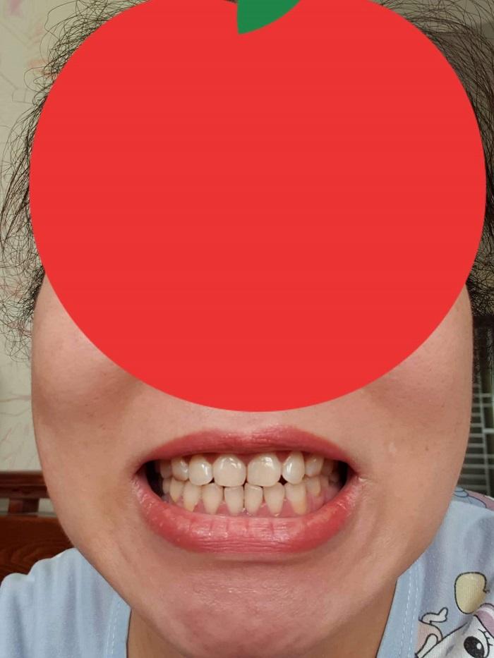 răng sứ dỏm