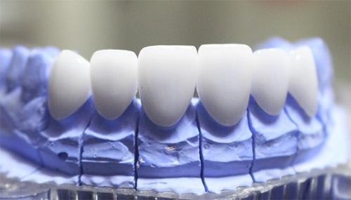 răng sứ dresden