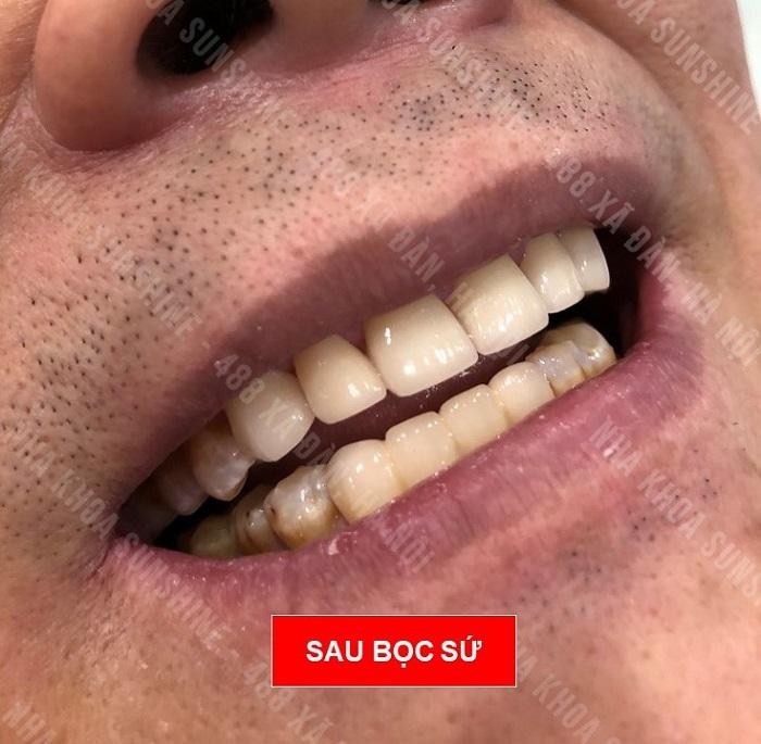răng sứ giá 3 triệu