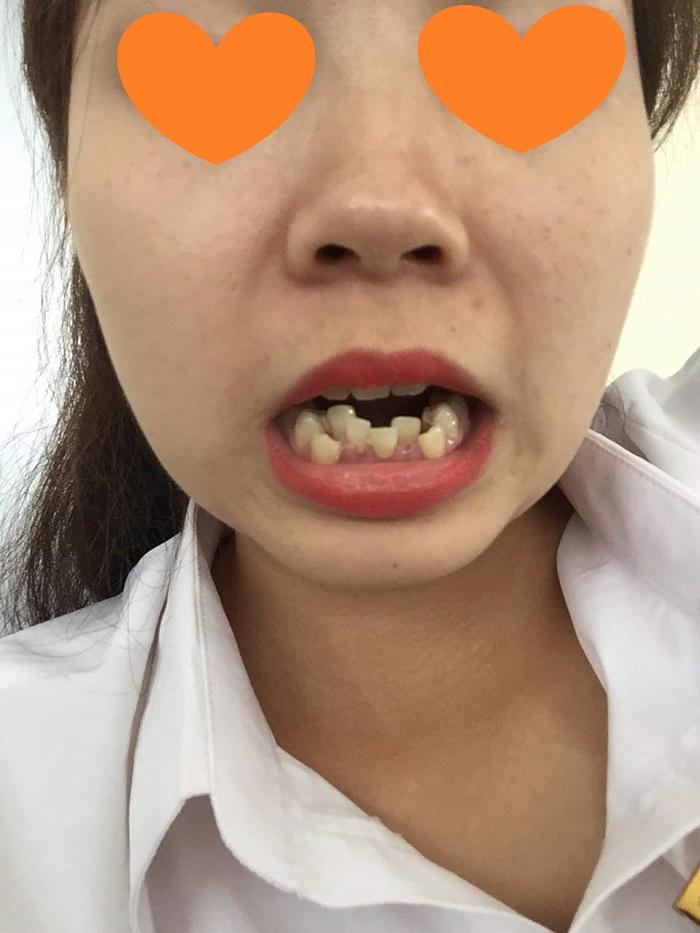 răng sứ giá gốc
