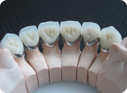 răng sứ kim loại có tuổi thọ bao lâu