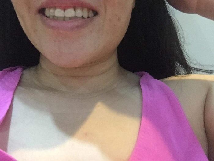 răng sứ mỹ là gì