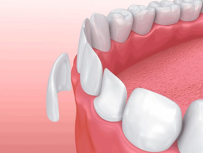 răng sứ nano shining 5s giá bao nhiêu