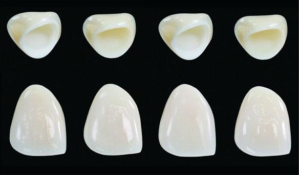 răng sứ Titan HCM