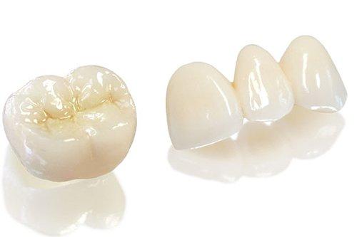 răng sứ Titan bảo hành bao lâu