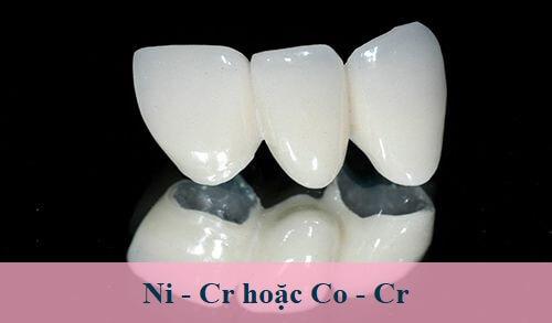 răng sứ titan berlin