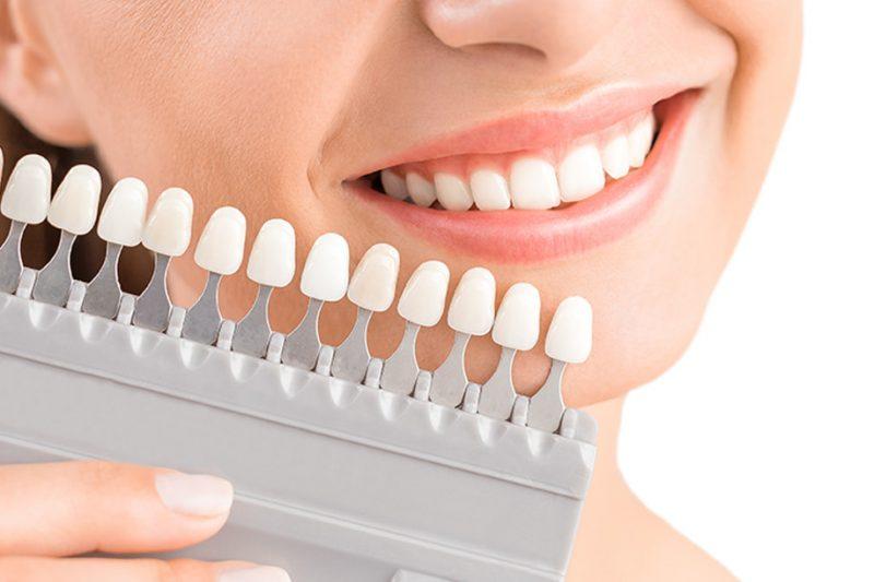 răng sứ Titan có bị đen không