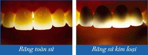 răng sứ titan có bị đen viền nướu không