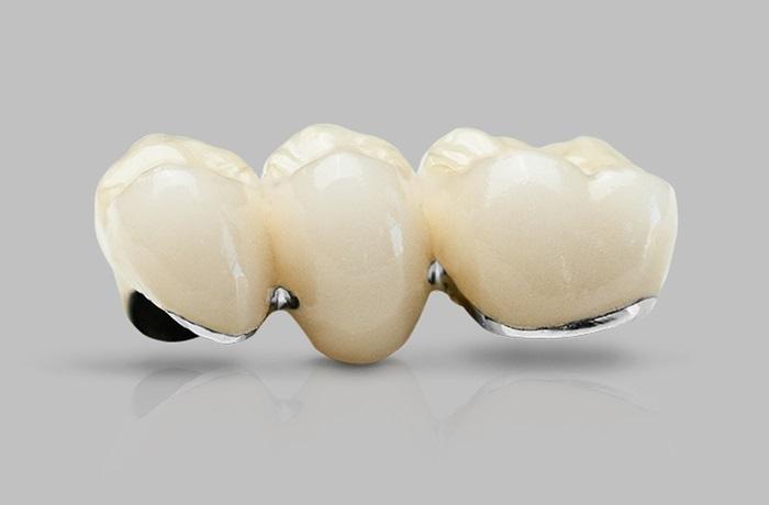 răng sứ Titan của mỹ