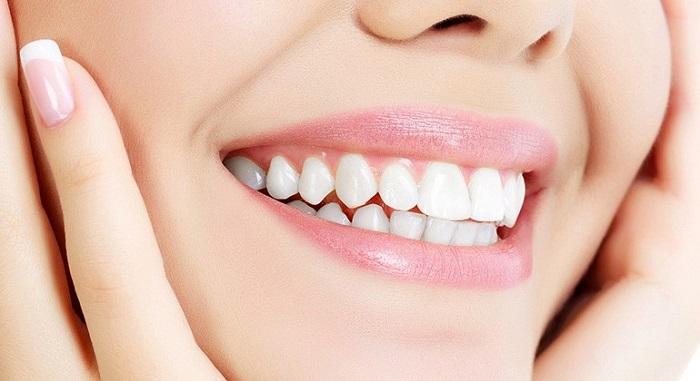răng sứ Titan Hà Nội