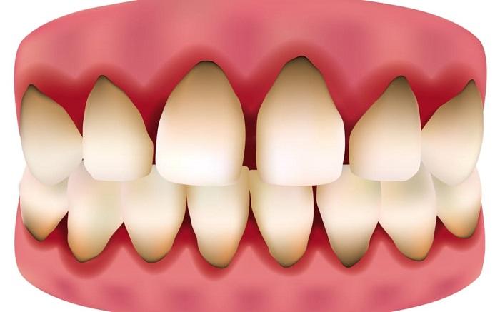 răng sứ Titan mỹ