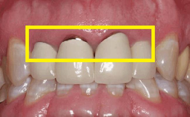 răng sứ vita là gì