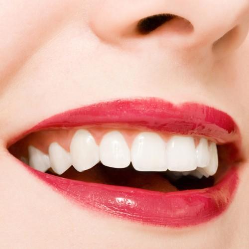 răng sứ zirconia 3d