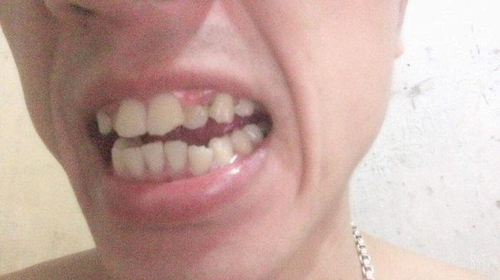 răng sứ zirconia có tốt không