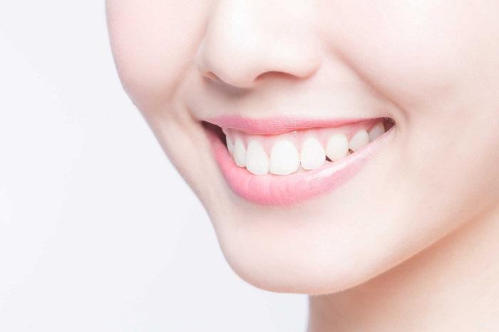 răng toàn sứ có tẩy trắng được không
