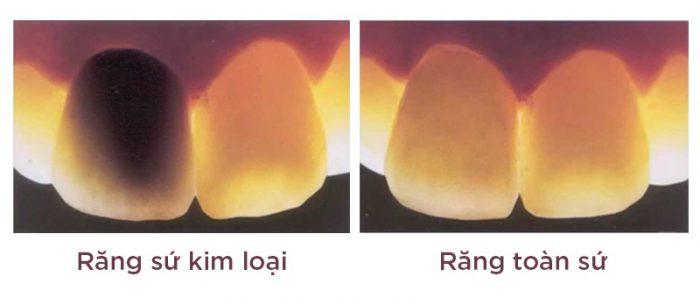 tác hại của bọc răng sứ kim loại