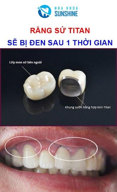 tại sao bọc răng sứ lại bị hôi miệng
