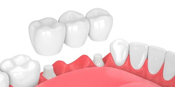 thời gian làm cầu răng sứ