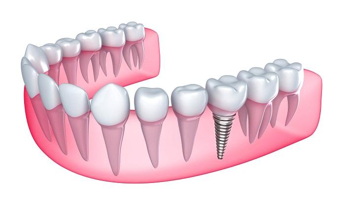 trồng 1 răng giả giá bao nhiêu