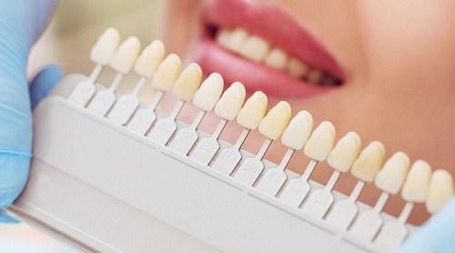 trồng 2 răng cửa giá bao nhiêu