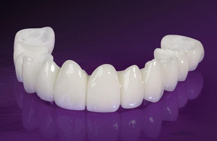trồng răng bình thường giá bao nhiêu