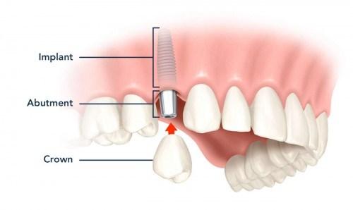 trồng răng cấm bị mất