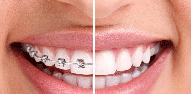 trồng răng có niềng được không