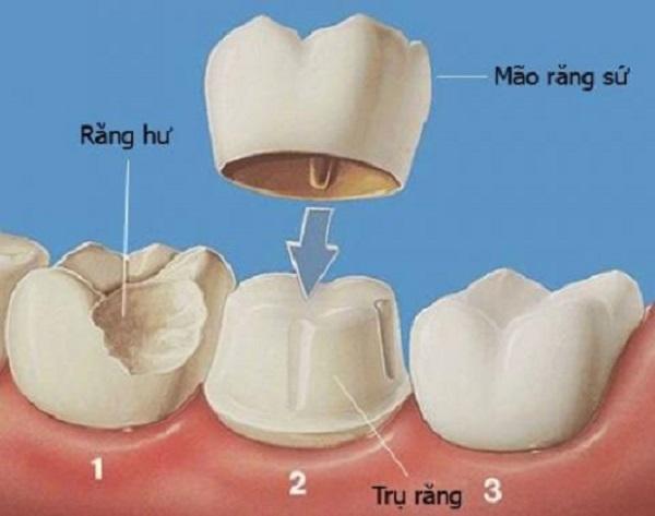 trồng răng cửa giá bao nhiêu