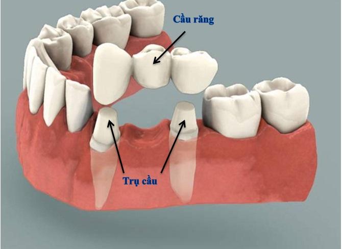 trồng răng cửa tháo lắp