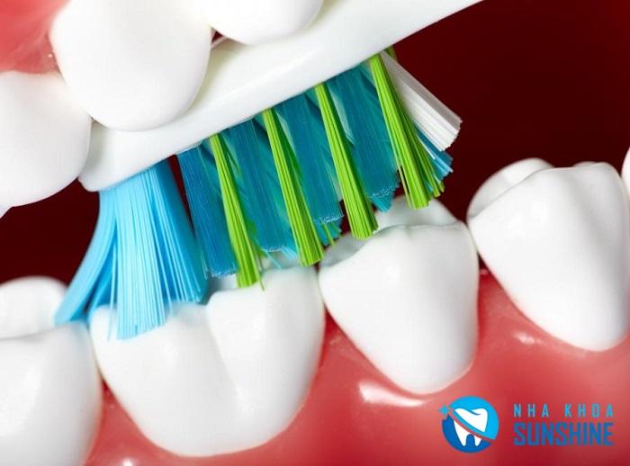 trồng răng được bao lâu