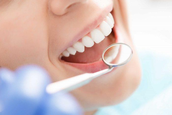 trồng răng giá bao nhiêu