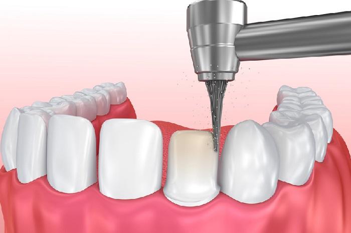 trồng răng giả đau không