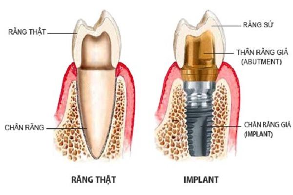 trồng răng giả giá bao nhiêu