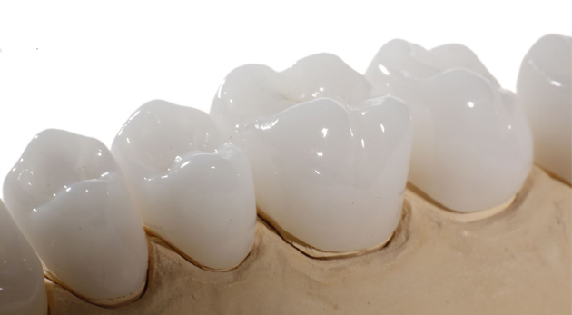 trồng răng giả giá rẻ