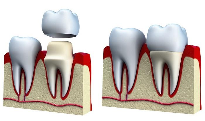 trồng răng giá rẻ ở hà nội
