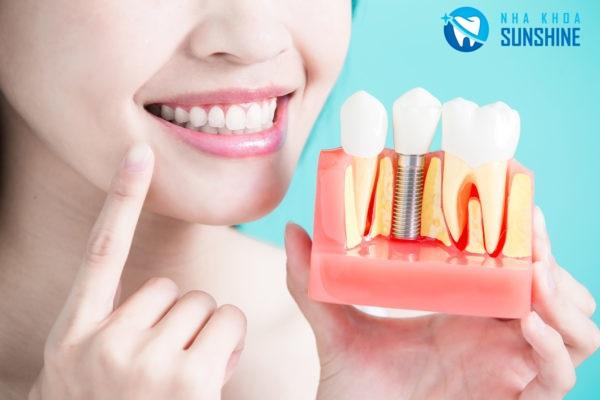 trồng răng hàm sứ titan