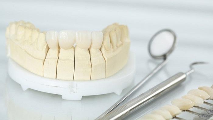 trồng răng hàm trên giá bao nhiêu