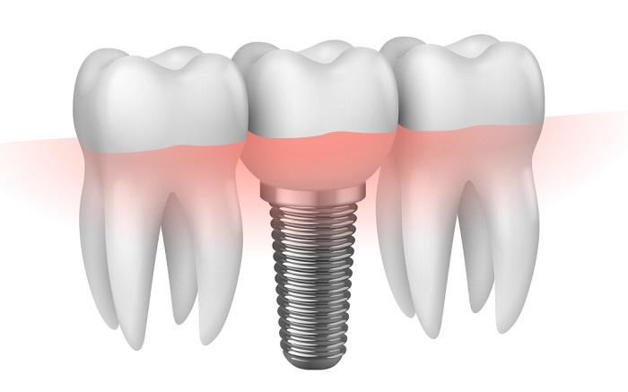 trồng răng hàm trong cùng