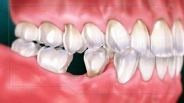 trồng răng hiện đại