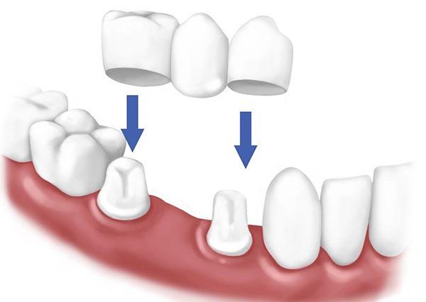 trồng răng khểnh đẹp