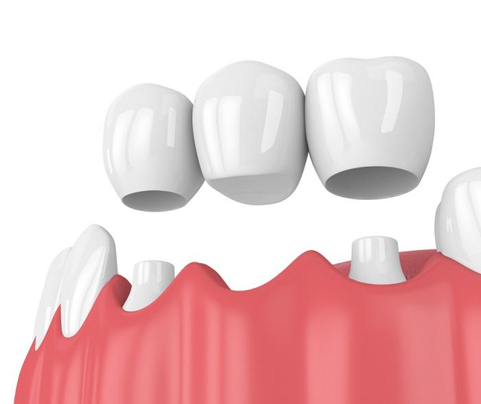 trồng răng khểnh nam