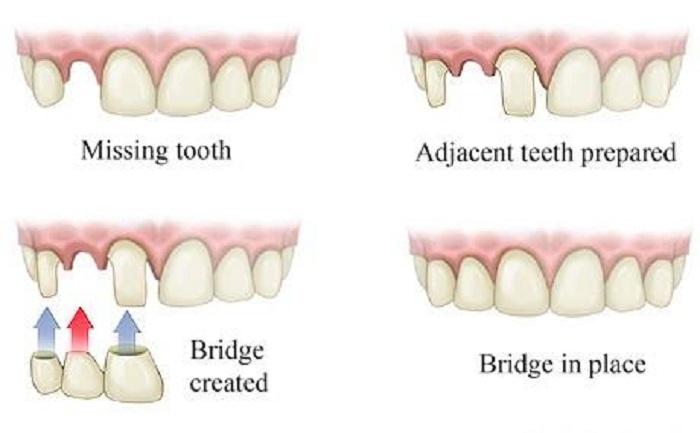 trồng răng khểnh như thế nào