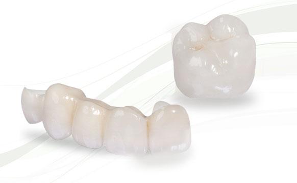 trồng răng ở nhật bản giá bao nhiêu