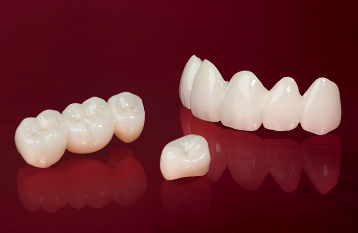 trồng răng sứ bắc cầu có tốt không