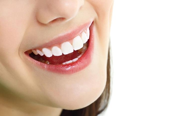 trồng răng sứ bị hở