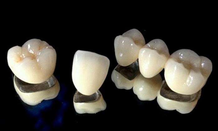 trồng răng sứ bị viêm nướu
